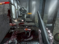 Should've taken that job in Raccoon City.  I bet this never happens in the American midwest.